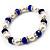 White & Royal Blue Imitation Pearl Bead With Diamante Ring Necklace, Bracelet & Earrings Set (Silver Tone Metal) - 44cm L/ 4cm Ext - view 19